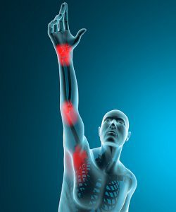 Shoulder, elbow and wrist pain