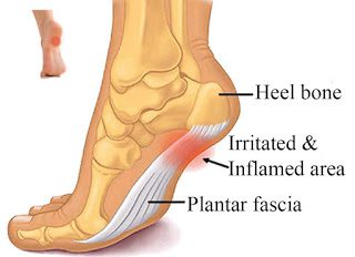 Plantar Fasciitis – Do the soles of your feet hurt first thing in the morning?