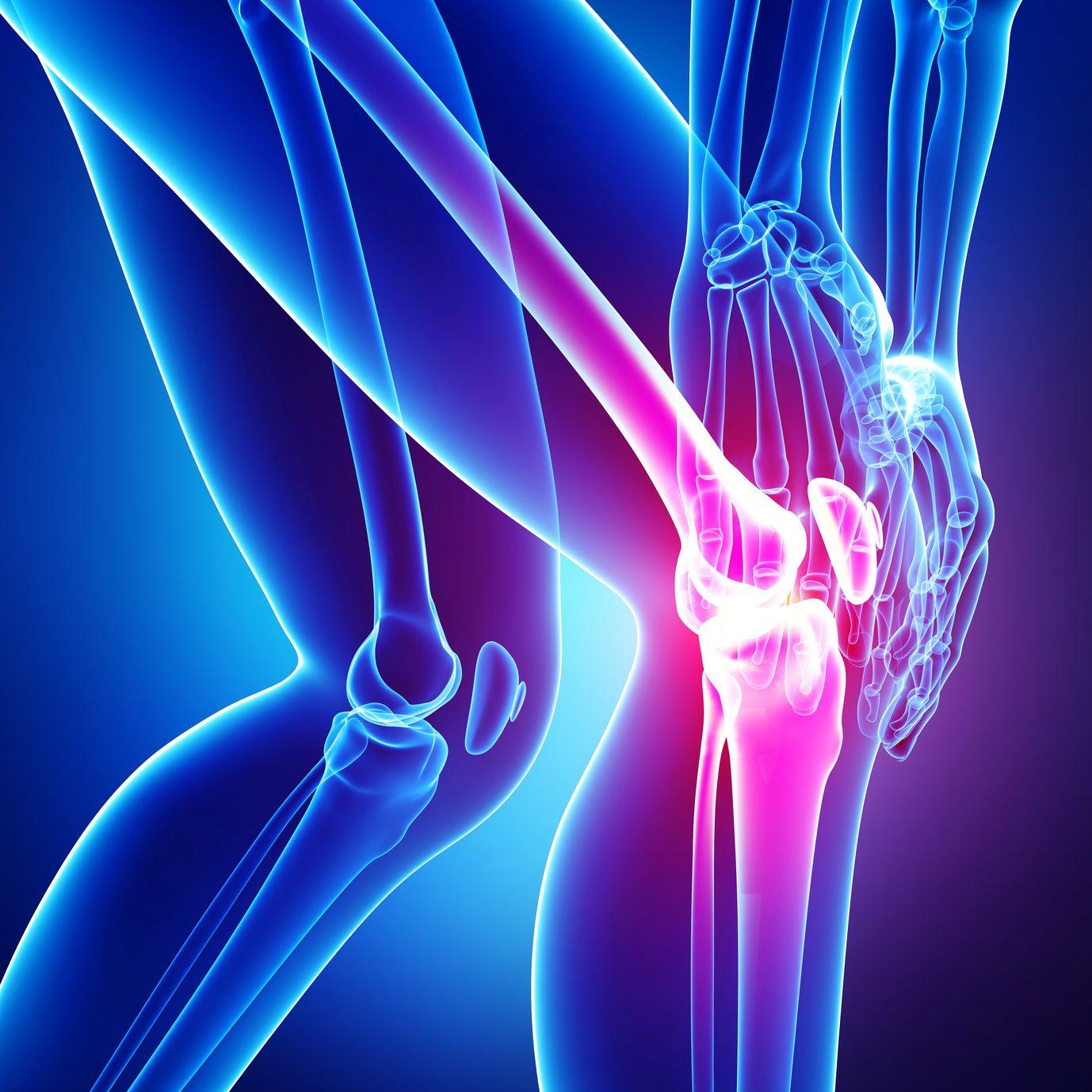 Arthritic Knee Pain - Total Chiropractic